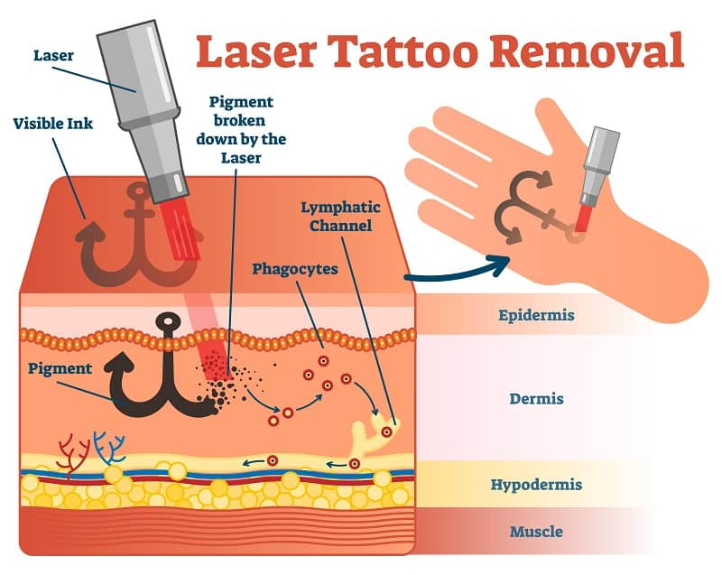 Wavelengths, pulses, and energy of laser tattoo removal